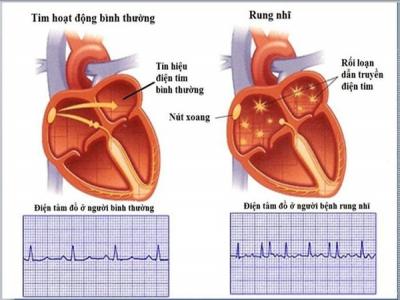 Những điều người bệnh tim cần biết về rung nhĩ