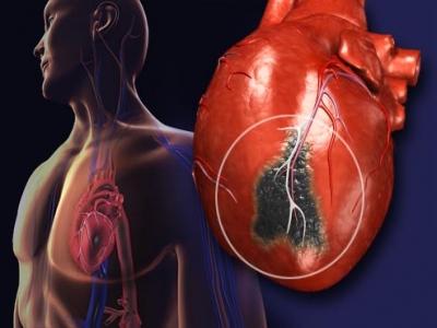 Hiểu thêm về nhồi máu cơ tim
