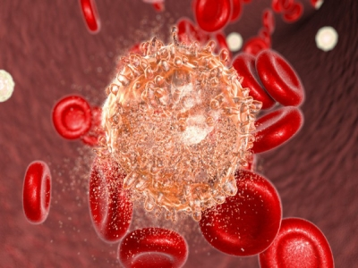 Ung thư máu sống được bao lâu?
