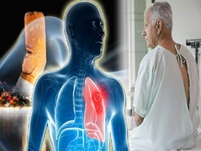 Tiết lộ 5 sự thật ít biết về ung thư phổi