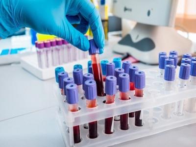 Xét nghiệm cần làm để phát hiện ung thư máu