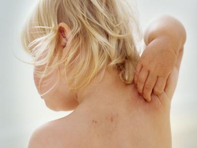 Cái nhìn đối với bệnh Eczema.