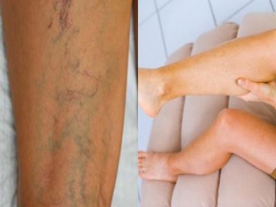Tĩnh mạch mạng nhện và suy giãn tĩnh mạch - Nguyên nhân, trước và sau điều trị