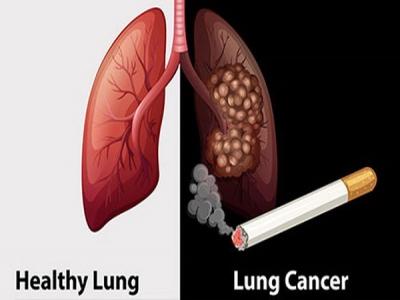 Những bệnh ung thư liên quan tới thuốc lá